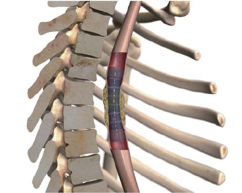 segmented stent